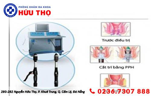 phuong phap ho tro dieu tri tri noi