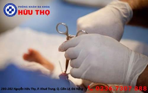 Phương pháp điều trị hẹp bao quy đầu không đau
