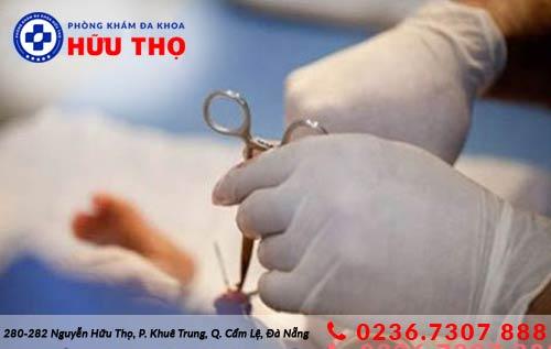 phuong phap tri viem bao quy dau 1